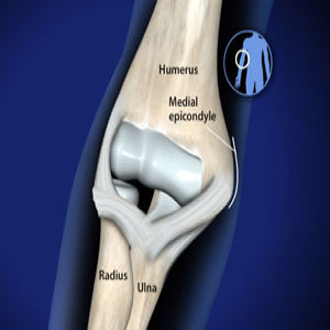 Treating Throwing injuries of the elbow in Plano, Frisco, McKinney and Allen