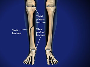 Treating Tibial Fractures in Plano, Frisco, McKinney and Allen