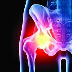 Total Joint Replacement in Plano, Frisco, McKinney and Allen