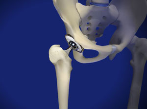 Total Hip Replacement in Plano, Frisco, McKinney and Allen