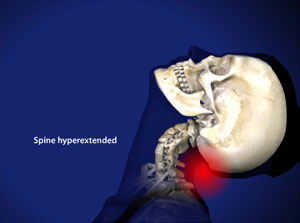 Treating Whiplash in Plano, Frisco, McKinney and Allen