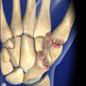 Basal Joint Surgery