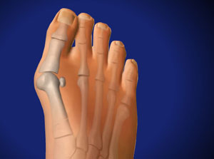 Bunionectomy With Wedge Osteotomy in Plano, Frisco, McKinney and Allen