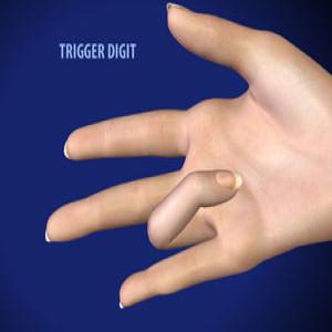 Trigger Digit Release in Plano, Frisco, McKinney and Allen