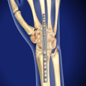Treating Wrist Arthroscopy in Plano, Frisco, McKinney and Allen