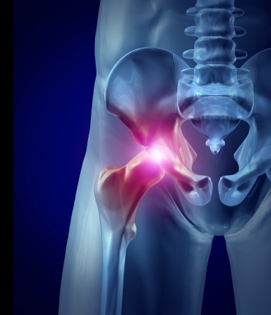 What is a Total Hip Replacement?