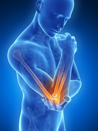 Orthopedic Elbow Surgery in Plano, Frisco, McKinney and Allen