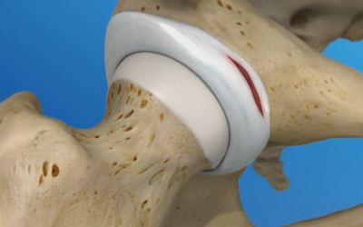 What is a Hip Labral Tear?