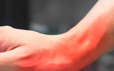 What Causes Carpal Tunnel Syndrome?